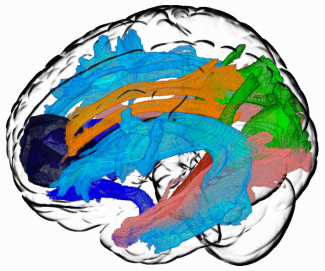 computer-generated image of brain with color tracks running through it